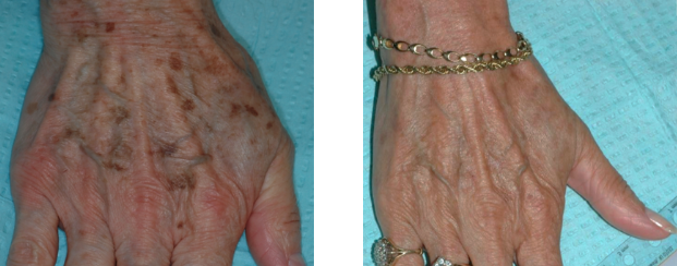 Skin Discoloration - Infinite Skin and Laser